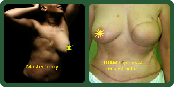 mastectomy photo